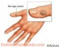 Acido tricloroacetico para verrugas de la piel y genitales